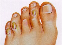 Foot Corns Treatment without surgery