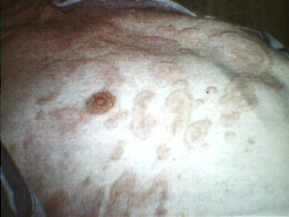 Itching patches of Urticaria